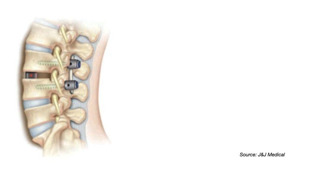 經椎孔腰椎椎體間融合手術 Transforaminal Lumbar Interbody Fusion Featured Image